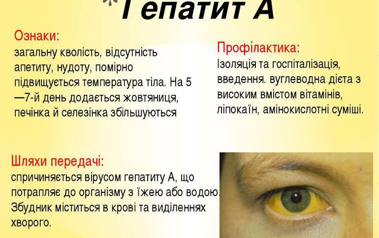 гепатит A