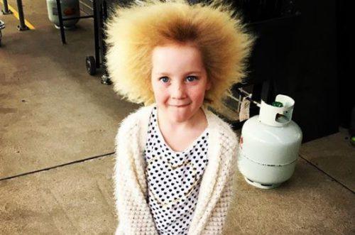 Через рідкісну гeнетичну аномалію дівчинка не може розчесати волосся(фото)